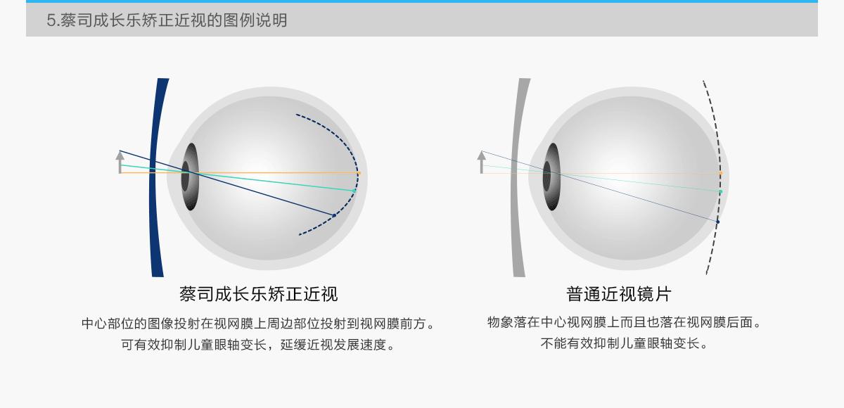 亚虎娱乐手机网页版_蔡司成长乐系列镜片